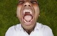 世界上牙齿最多的人有多少颗,印度男孩526颗
